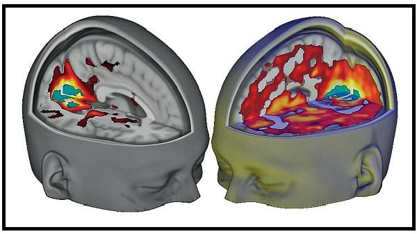 LSD - Cérebro